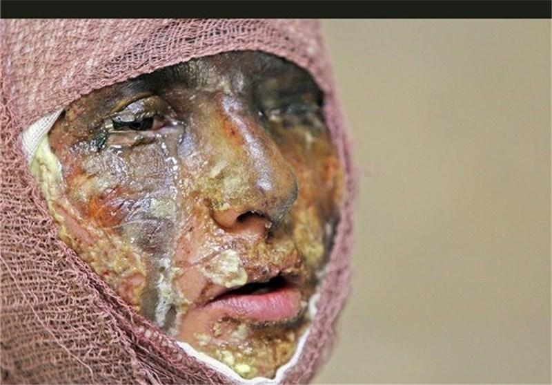 اسیدپاشی، شهروند رودسری را روانه بیمارستان کرد